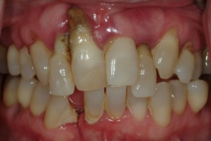Severe gum disease Sedona Dental Patient