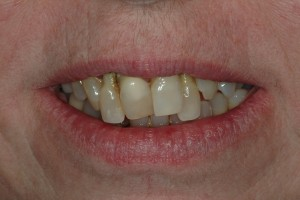 Crooked Front Teeth Sedona Dentist