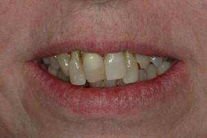 Crooked Front Teeth Sedona Dentist