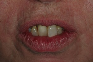 Sedona Front Teeth with Gum Disease