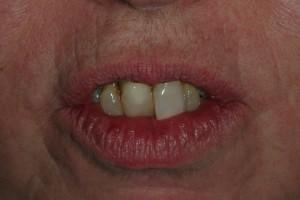 Sedona Front Teeth with Gum Disease