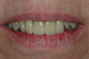 Partial Denture replacing upper front teeth, note the improved cosmetics