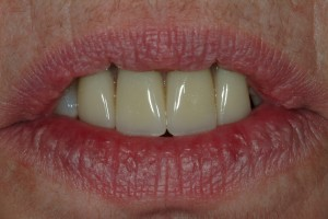 Sedona Cosmetic partial Denture