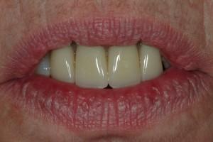 Sedona Cosmetic partial Denture