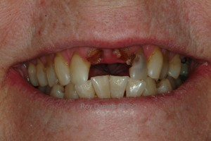 This is a photo of two upper missing front teeth before a dental bridge is placed
