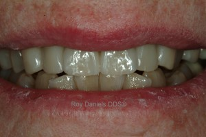 dental bridge patient of  Sedona Dentist Roy Daniels after Treatment