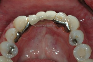 Dental bridges problems corrected by dentist serving Village of Oak Creek VOC Sedona AZ Roy Daniels