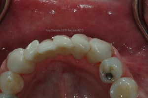 Zirconia dental bridges are much more esthetic and can be stronger than porcelain baked to metal bridges