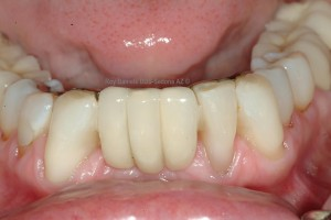 Dental bridge replacement cost can vary with the quality of the dentist and the dental lab