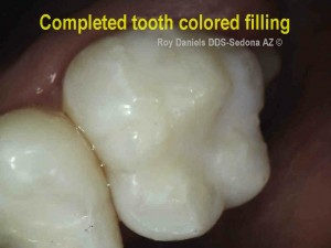 Photo of a tooth with cavities repaired with a resin composite filling - tooth colored filling