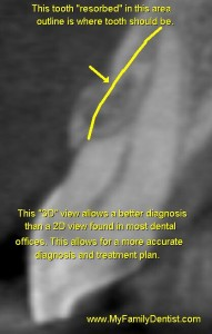"""This 3D dental image allows the patient to understand and """"see"""" what the problem is, part of the root is being """"resorbed"""" or eaten away."""