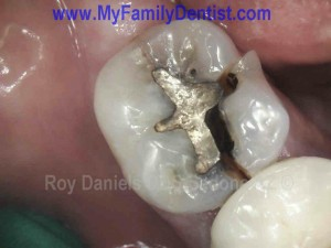 Broken Tooth Chipped Tooth Cracked Tooth Sedona Az