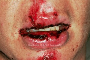 This patient fell off of a bicycle and suffered facial trauma