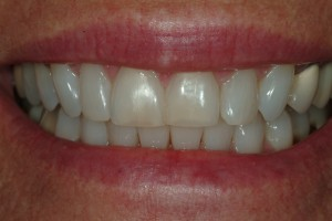 Black Dental Triangle (s) Repaired