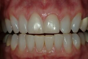 Black Triagle Between Teeth Repaired