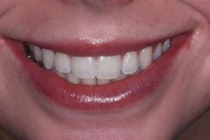 Biologic Dentistry in Sedona Az make more Sedona Smiles