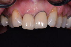 Black Line removal on dental crowns