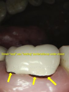 Crowns that have been on for long periods of time can become loose due to decay growing underneath the crown