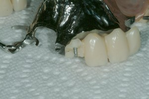 partial denture repair same day in sedona az