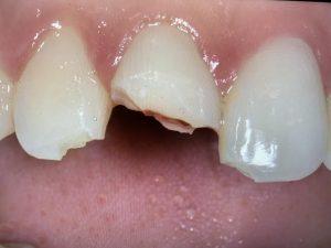 Image of a brokjen tooth that needs emergency dental visit