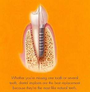 Dental implants vs bridge by experienced cosmetic Sedona Dentist Roy Daniels