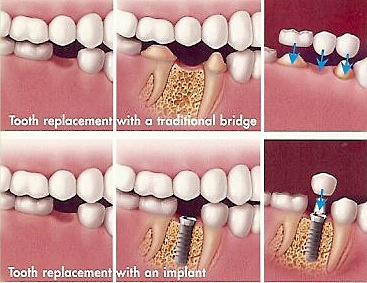Dental Implant v Bridge
