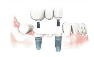 Implant Dental Bridge Sedona