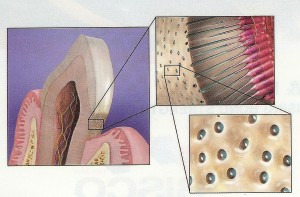 Drawing of a tooth root showing exposed dentin tubules that allow the root to be sensitive