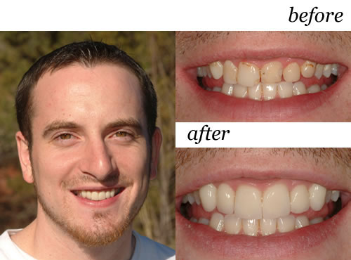 ACTUAL Porcelain Veneer PATIENT of Sedona Dentist Roy Daniels