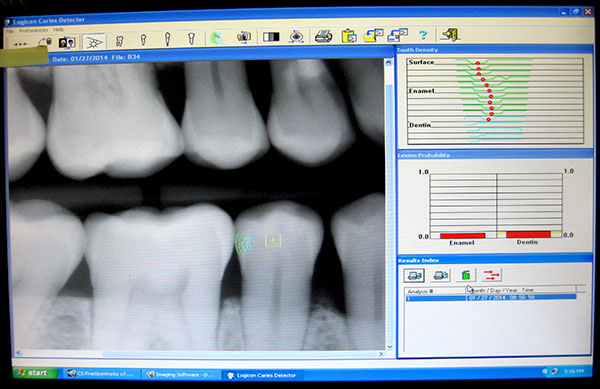 Advanced Technology used in the dental office. We use Laser cavity detection