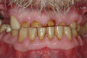 Photo of teeth worn prior to dental treatment by Sedona dentist Roy Daniels
