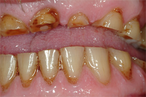 Photo of severely worn upper teeth that need full mouth reconstruction